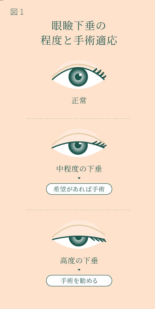 眼瞼下垂の程度と手術適応