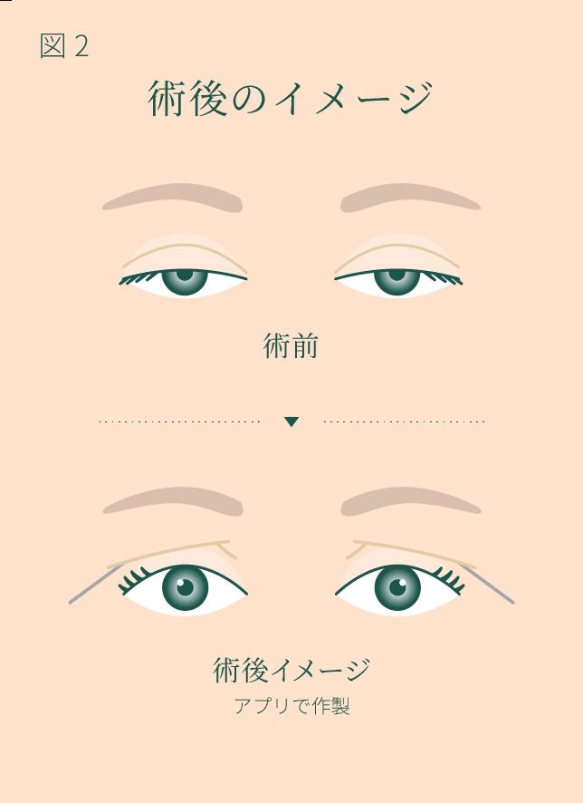 眼瞼下垂 手術後のイメージ