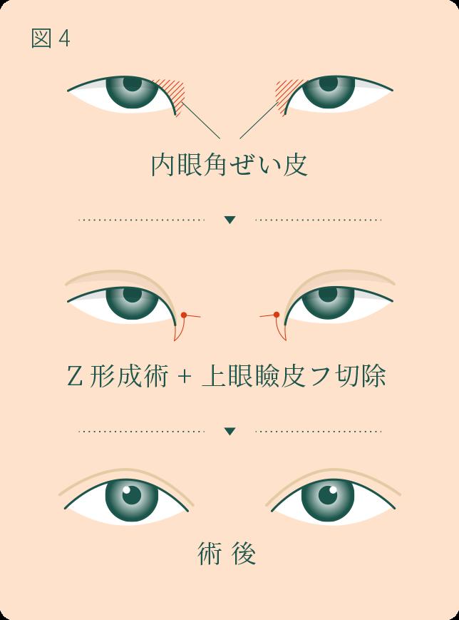 内眼角形成術(目頭切開) について